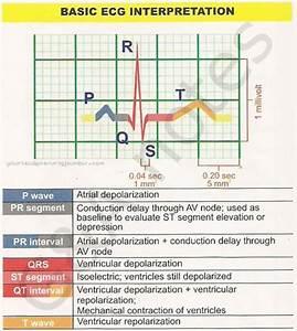 Basic Ecg Interpretation Guide