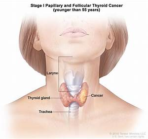 Thyroid Cancer Treatment (PDQ®)—Patient Version - National ...