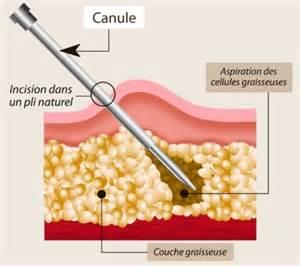 Le A Graisse Definition by Liposuccion Par Chirurgie D 233 Finition Ooreka