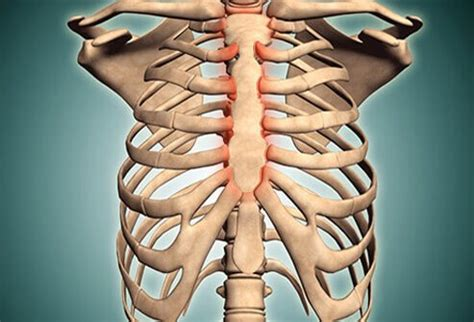 Costochondritis Images Costochondritis Symptoms Causes And Treatment