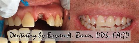 high resolution   dental implants bauer smiles
