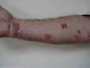 The gallery for --> Shingles On Hands And Arms
