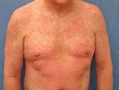 Drug hypersensitivity syndrome | DermNet NZ