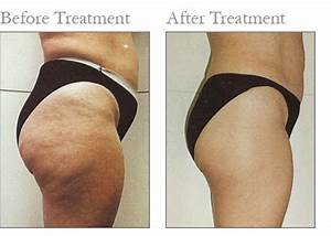 Lpg endermologie before and after