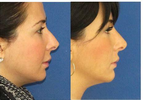 surgical nose job  chin augmentation  filler