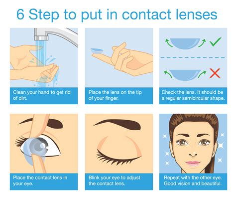 Ideal Family Eye Care  Lens Insertionremoval And Care