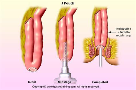 gastroenterology education  cpd  trainees