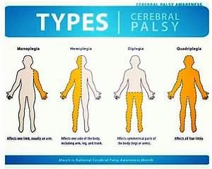 Best 25+ Types of cerebral palsy ideas on Pinterest ...