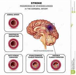 Stroke In The Brain Artery Stock Vector