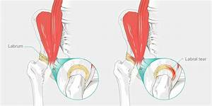 Snapping Hip Syndrome  U2013 The Complete Injury Guide