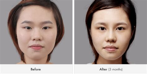 Korean Plastic Surgery Popular, Bigger Eyes With Canthoplasty Plastic Accordion File Surgery Physician Assistant Jobs Clear Christmas Balls Install Nose Pads On Frames 15 Gallon Open Top Drum Jesus Cool Hand Luke Paint That Sticks To Surgeon Ontario Ca