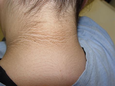Acanthosis Nigricans Pictures Symptoms Causes And