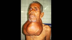 Largest Thyroid Swelling Ever Seen On Earth