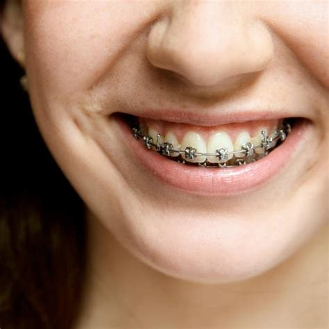 This guide will help you navigate your many times, orthodontic benefits do cover braces, but it depends on the plan. Braces In St. Albert   Braces Dentist Near You   Free Consult