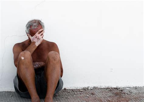 vitiligo symptome ursachen der weissfleckenkrankheit