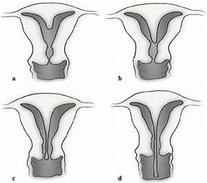 Sepatate Uterus  Partial   A   And Complete   B    Uterine