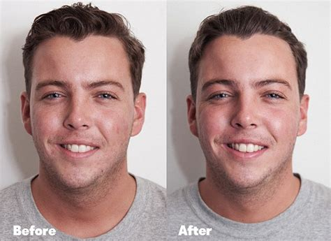 led light therapy before and after towie 39 s diags had led light therapy to clear up acne