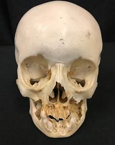 Human Fetal Skulls For Sale
