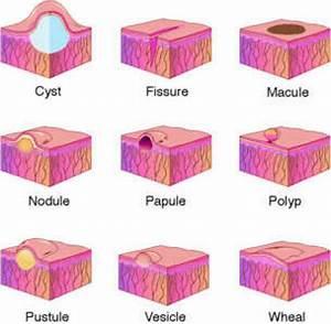 SKIN LESION: Cyst, Fissure, Macule, Nodule, Papule, Polyp ...