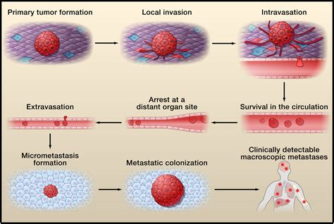 Tumor Metastasis: Molecular Insights and Evolving ...