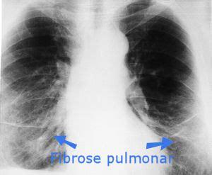 mesotelioma  asbestose causas sintomas  tratamento