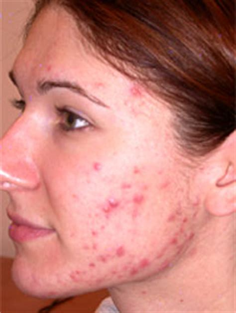 Image result for what is acne