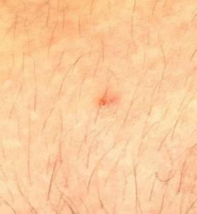 Sekundenkleber Auf Der Haut : rote punkte die meistgelesenen fragen ~ A.2002-acura-tl-radio.info Haus und Dekorationen