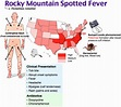 Rapid Review: Rock Mountain Spotted Fever - RoshReview.com