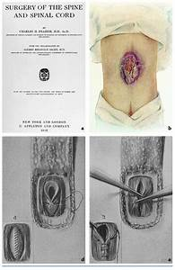 The History  U0026 Future Of Spina Bifida