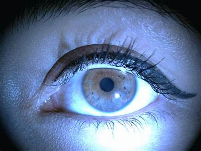 Reflex Pupillary Pupil
