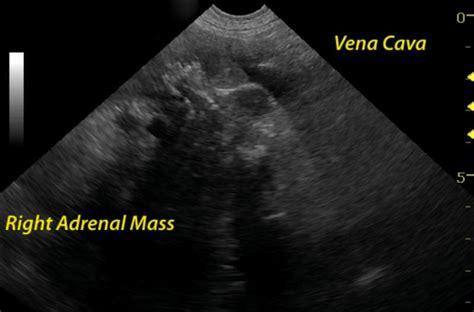 invasive adrenal mass sonopath