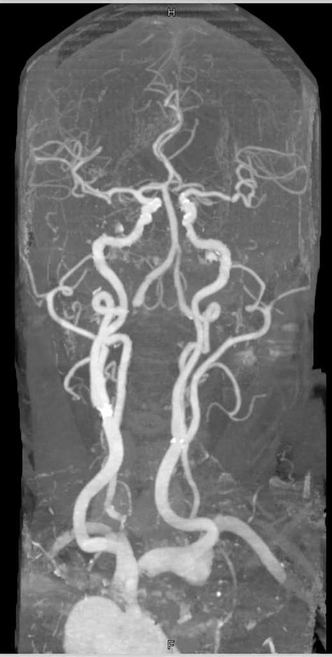 CTA Carotid Arteries with Minimal Plaque - Neuro Case