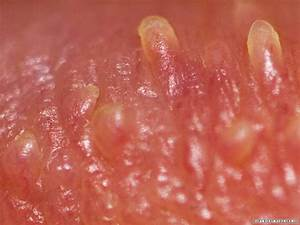 Pearly penile papules | Primary Care Dermatology Society | UK