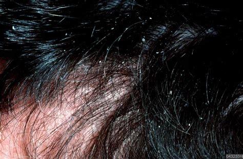 Psoriasis, behandeling van psoriasis