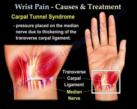 wrist pain,causes and treatment PART I. Everything You