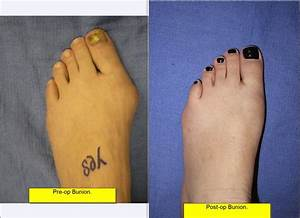 The Best Bunion Surgeon And Why