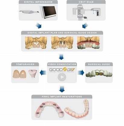 Implant Surgical Guide Planning Guides Services Workflow