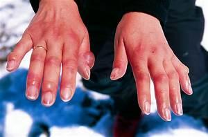 hands peeling causes