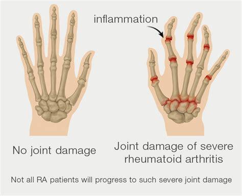 Doe Rã Sumã by Rheumatoid Arthritis Symptoms Ra