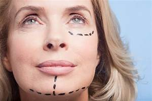 How Fat Transfer Improves The Results Of Facelift Surgery