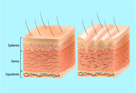 The Three Layers Of Your Skin