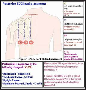 17 Best Images About Ecg  Ekg Study Memo Cards On Pinterest