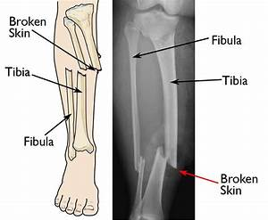 Open Fractures - Orthoinfo