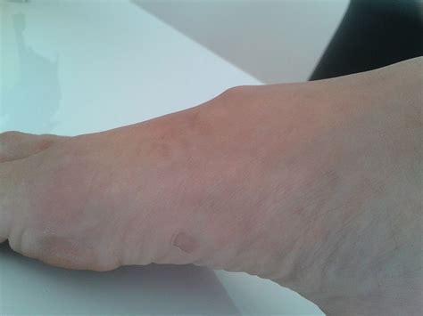 gigroma na stope heilerde bei hauterkrankungen und bei