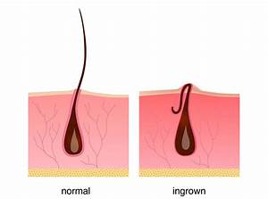 The Ultimate Guide To Beards And Ingrown Hairs  U2013 Uncle