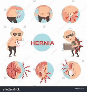 Diagram Inside Umbilical Inguinal Hernia Men Stock Vector 461693236