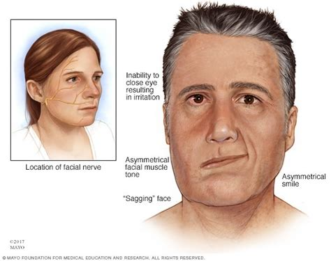 Bell's palsy - Symptoms and causes - Mayo Clinic