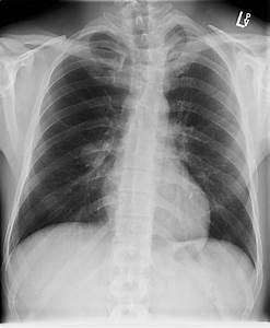 Calcifying Fibrous Pseudotumour Of The Lung