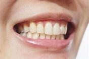 美齒 悅庭牙醫3D數位瓷牙貼片。一部電影的時間,給我永久自然亮白的完美門牙♥ - Amber。迷你馬的逆襲