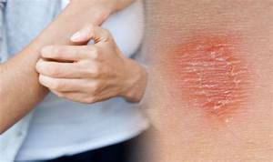 Itchy Skin  Four Causes Of Irritation If You Also Have A
